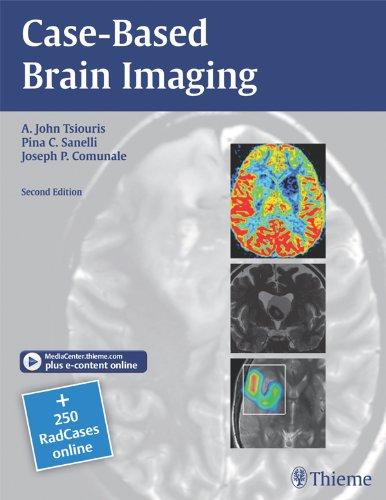Case-Based Brain Imaging (2nd 2012) [Tsiouris, Sanelli & Comunale]