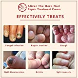 Nail Fungus Treatment, Herb Foot Nail Repair