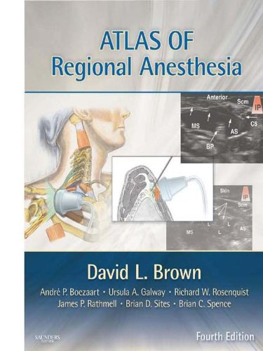 Atlas of Regional Anesthesia E-Book (Expert Consult Title: Online + - Bevel Brown