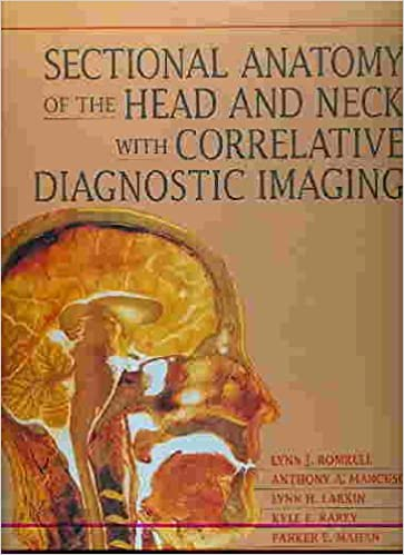 Sectional Anatomy Of The Head And Neck With Correlative Diagnostic