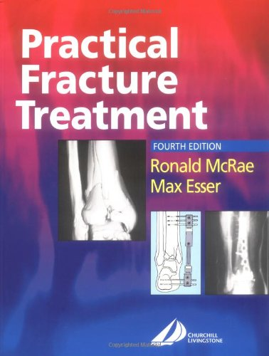 Practical Fracture Treatment, 4th Edition