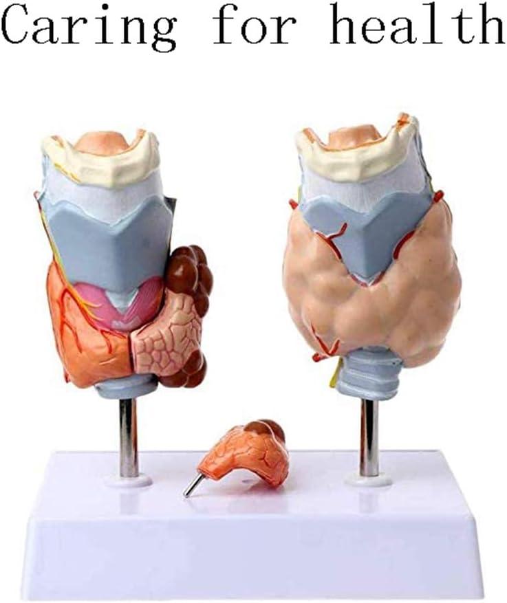 Modelo de Patología Tiroidea Modelo de Tiroides Enfermedad Endocrina Juguetes De Enseñanza Médica Modelo de Enfermedad de Tiroides, Para Doctores Oficina Herramienta Educativa
