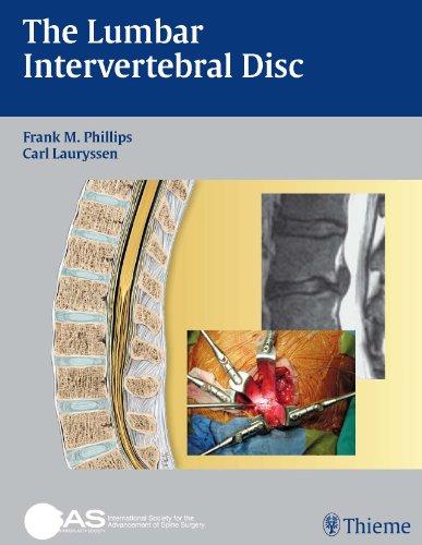 The Lumbar Intervertebral Disc (1st 2009) [Phillips & Lauryssen]