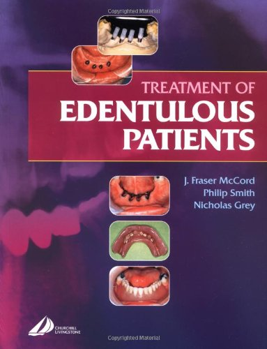 Treatment of Edentulous Patients