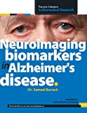 Neuroimaging Biomarkers in Alzheimer's Disease, Samuel Barrack, 1492274429