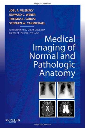 Medical Imaging of Normal and Pathologic Anatomy, 1e