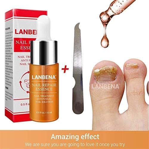 Nail Fungus Treatment, Shouhengda Premium Fungal Nail Treatment Nail Whitener, Finger and Toe Nail Fungus Treatment Essence