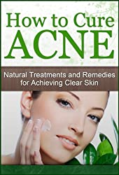 How to Cure Acne: Natural Treatments and Remedies for Achieving Clear Skin (Acne Cure, Acne Diet, Acne Scar, Acne Care, Acne Free) (English Edition)