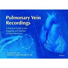 Pulmonary Vein Recordings