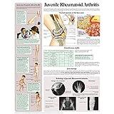 Juvenile Rheumatoid Arthritis e-chart: Quick reference guide