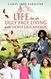 Life Has an Ugly Face Living with Sickle Cell Anemia!, Carol Sapp-Burnside, 1625090897
