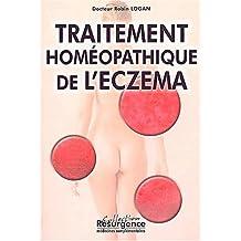 Le traitement homéopathique de l'eczéma