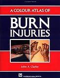 A Colour Atlas of Burn Injuries (Chapman & Hall Medical Atlas Series)