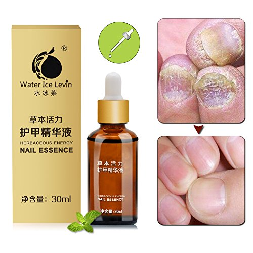 Sky-shop Fungus Stop Nail Fungus Treatments Nail Foot Whitening Toe Nail Fungus Removal Gel Anti Infection