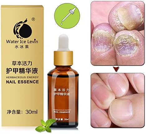 Fungus Nail Treatment,Sky-shop Fungus Nail Repair Oil, Fungal Nail Eliminator for Fingernails and Toenails, Repairs & Protects from Discoloration, Brittle and Cracked Nails