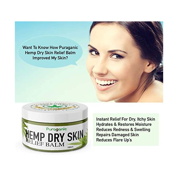 Hemp Dry Skin Relief Balm | Premium Natural Extracts' Ointment Helps Heal Irritated Skin, Psoriasis & Eczema, Soothe Dry, Itchy Skin, Reduces Scars & Stretch Marks, Anti-Aging (100ml)
