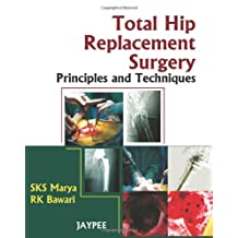 Total Hip Replacement Surgery: Principles and Techniques