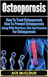 Osteoporosis: How To Treat Osteoporosis- How To Prevent Osteoporosis- Along With Nutrition, Diet And Exercise For Osteoporosis (Osteoporosis Treatment, ... Exercises, Osteoporosis, Osteoporosis Diet)