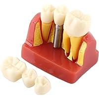 Resina Dental Demostración Educativa Modelo de diente Análisis