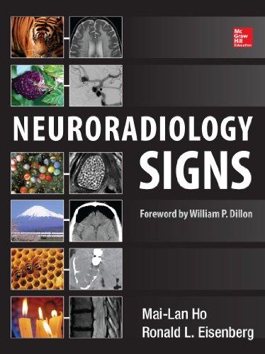 Neuroradiology Signs Pdf