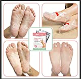 Soft Touch Foot Peel Mask, Exfoliating Callus