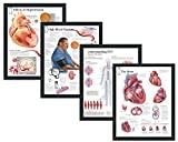 """Set of 4 Framed Medical Posters Effects of Hypertension High Blood Pressure Understanding DVT The Heart 22""""x28"""" Wall Diagrams Educational Informational Doctors Office Charts"""