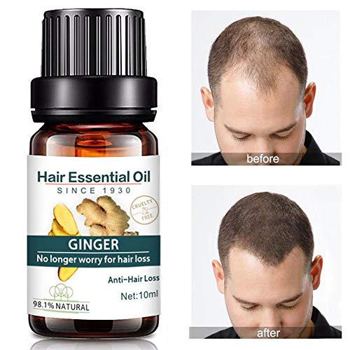Kasien Hair Growth Liquid, Natural Ginger Hair Growth Essence liquid Fast Hair Growth Natural Hair Loss Treatment (3 Pcs) by Kasien (Image #1)