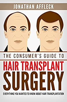 The Consumer's Guide to Hair Transplant Surgery: Everything You Wanted To Know About Hair Transplantation by [Affleck, Jonathan]