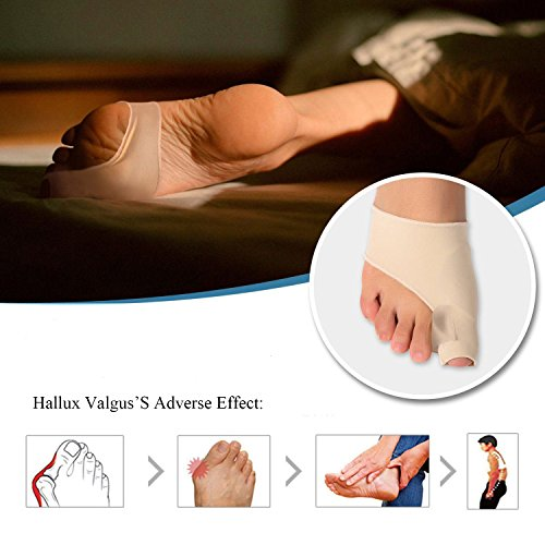 Bunion Corrector Pads Kit Bunion Protector Toe Spreader Bunion Relief Socks Sleeves Toe Stretcher & Separator,Foot Massage Ball for Tailors Bunion,Hallux Valgus,Overlapping Toes,Big Toe Joint by Carikaien (Image #6)