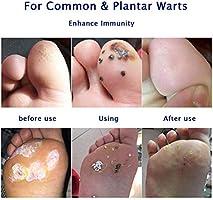Wart Remover Wart Removal Verruca And Plantar Wart Remover Wart Liquid Wart Remover Liquid Common And Plantar Warts Treatment Stop Warts Regrow Natural Advanced Liquid Formula Amazon Ae