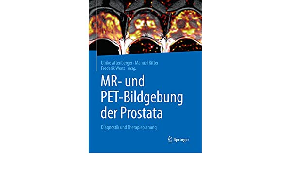 prostata pi rads klassifikation