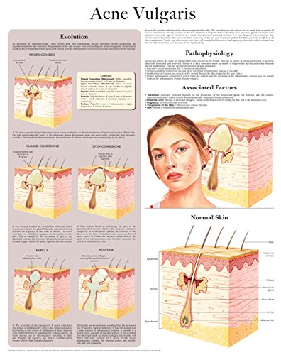 Acne Vulgaris e-chart: Full illustrated