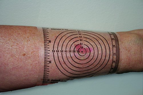 IB Disposable Wound Measurement Guide Pack: