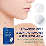 Skin Tag Remover, Mole Remover, New and improved