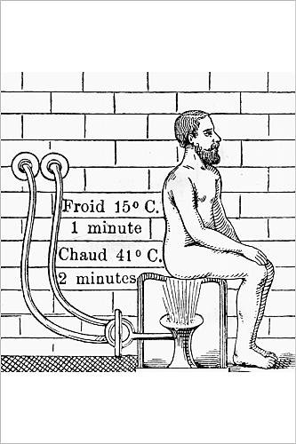 Photographic Print of ANAL DOUCHE 1902