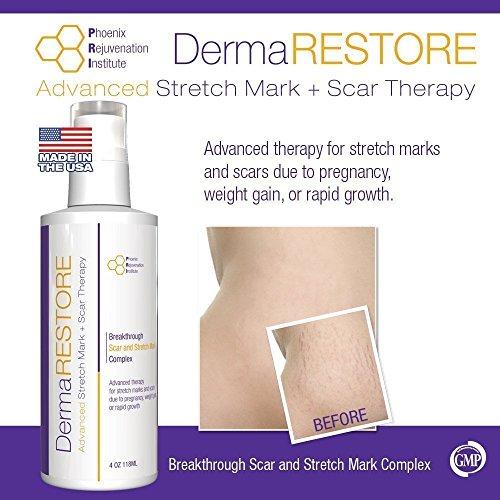 PRI Dermarestore Clinically Stretch Treatment
