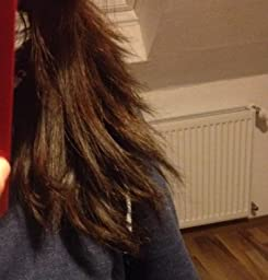 Die Behandlung des Haarausfalles bei den Männern kasan