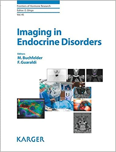 What do endocrinologists do?