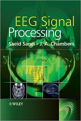 EEG Signal Processing: 9780470025819: Medicine & Health