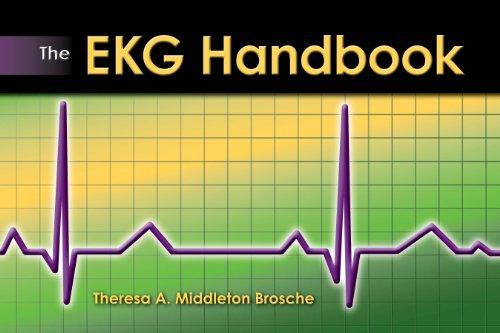 The EKG Handbook Pdf