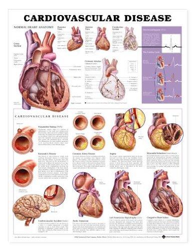 Cardiovascular Disease Anatomical Chart ()