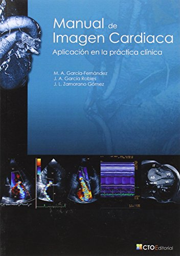 Manual de Imagen Cardiaca by CTO Editorial, S.L.