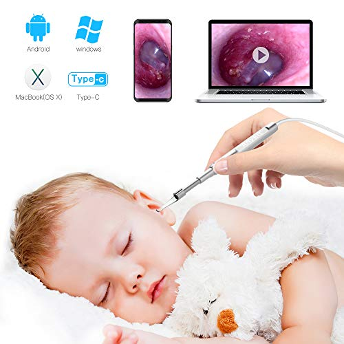 (Mini Otoscope-USB Ear Camera, Anykit 2019 New Updated 3.9mm Diameter Visual Digital otoscope with 6 LED Lights and Earwax Removal Tool for Adult & Children, Compatiable with Android, Windows & Macbook)