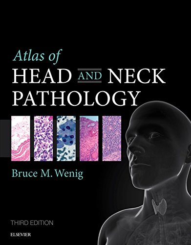 Download Atlas of Head and Neck Pathology (ATLAS OF SURGICAL PATHOLOGY) Pdf