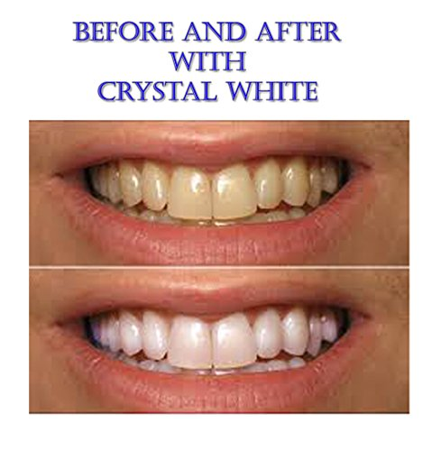 Amazon Com Pre Loaded Crystal White Professional Teeth Whitening