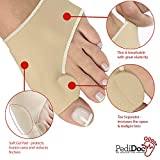 PediDoc Bunion Corrector – Bunion Relief Sleeves