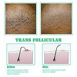 TailaiMei Exfoliating Brush for Ingrown Hair