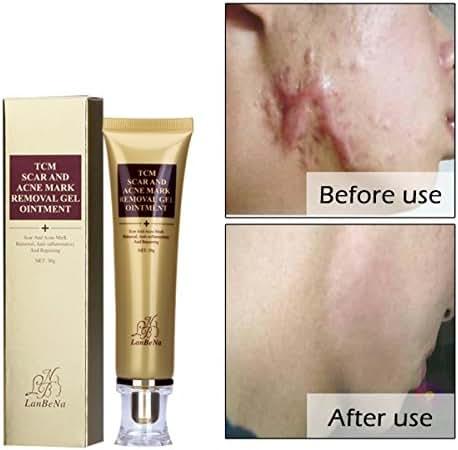 Beross Acne Scar Removal Cream Skin Repair Face Cream Acne Spots Treatment Blackhead Whitening Cream Stretch Mark Remover for Whole Body 30ml