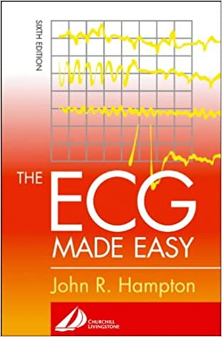 Ecg Made Incredibly Easy Pdf