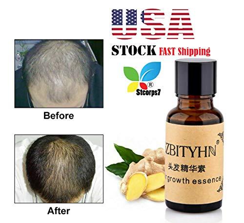 Amazon.com: Hair Growth Serum, Stcorps7 Hair Growth ...
